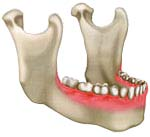 bone resorption