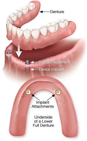 Denture Implants Diagram
