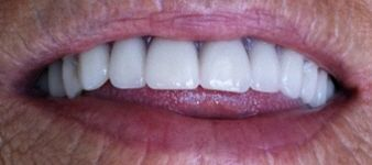 immediate dentures after